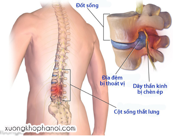 thoat-vi-dia-dem-cot-song-that-lung